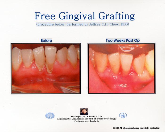 Photo Gallery Chow Periodontics